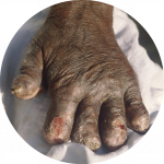 hand deformed by leprosy